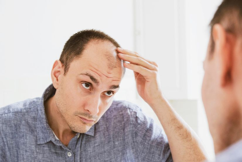 A man balding at the crown inspecting his head in the mirror